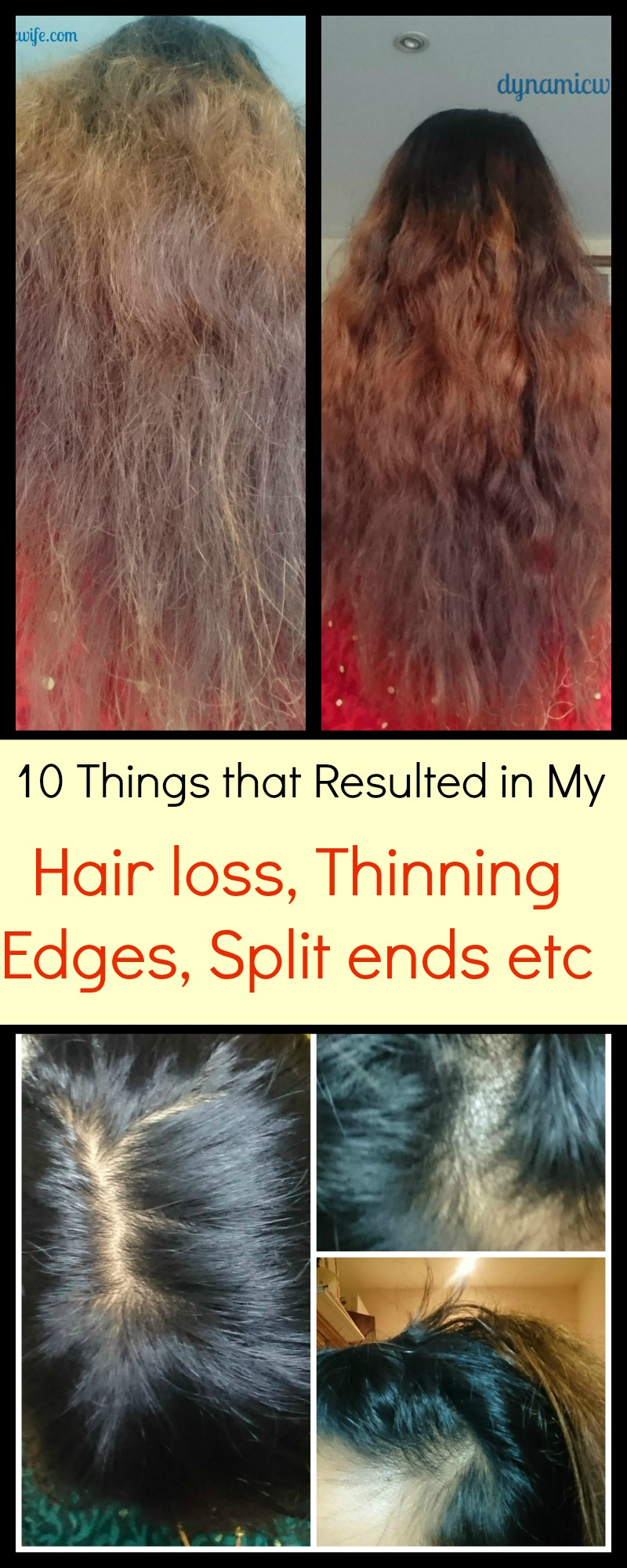 10 Causes of My Thinning Edges, Bald Spot and Split Ends! (Photos)