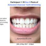 Activated Charcoal Teeth Whitening Experiment – 2 Real Users Before/After Pics