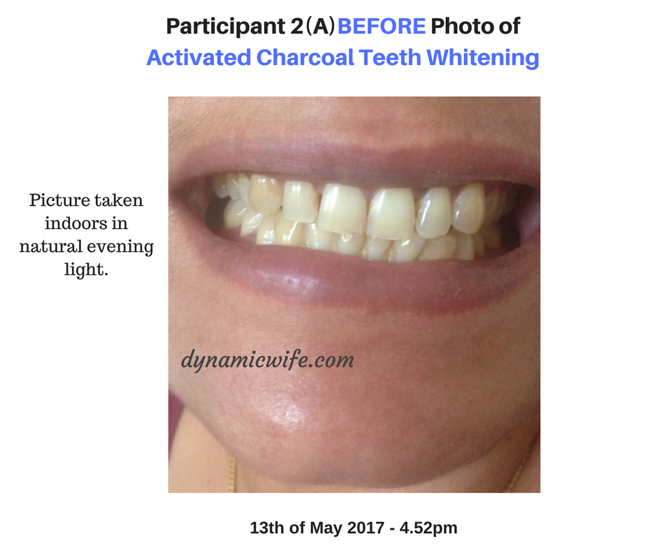 Participant 2 Before Photo of Activated Charcoal Whitening Results