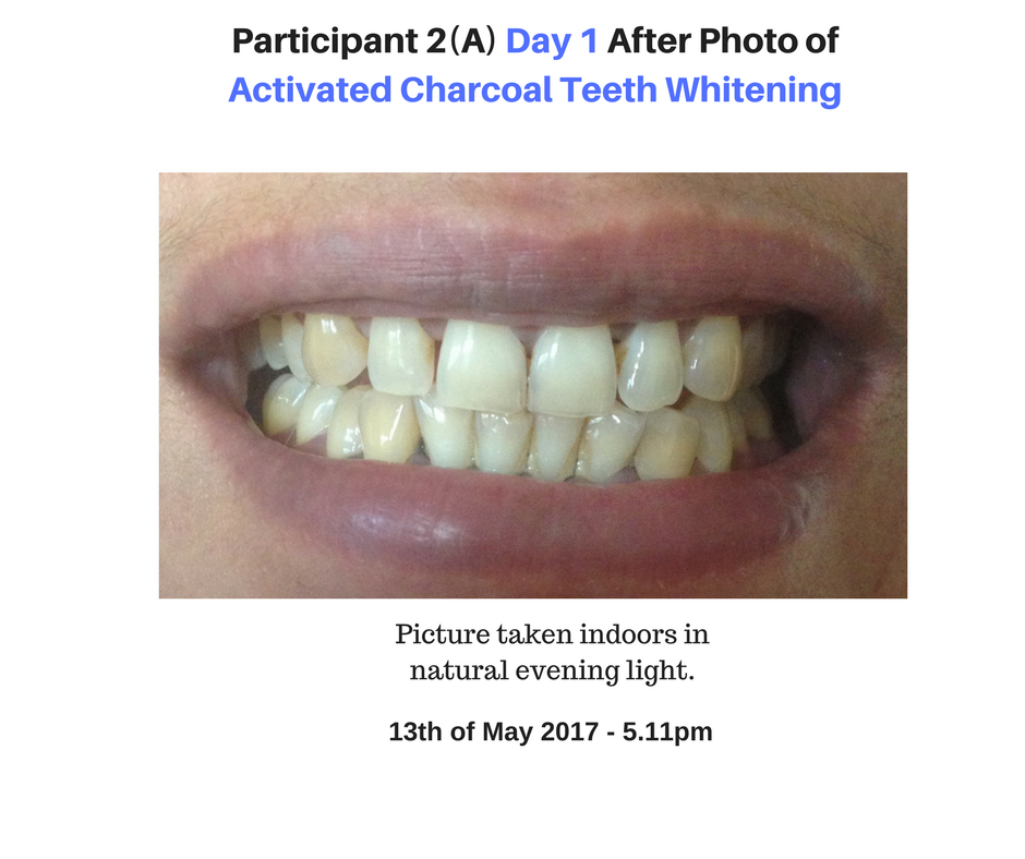 Participant 2 Day 1 Photo of Activated Charcoal Whitening Results