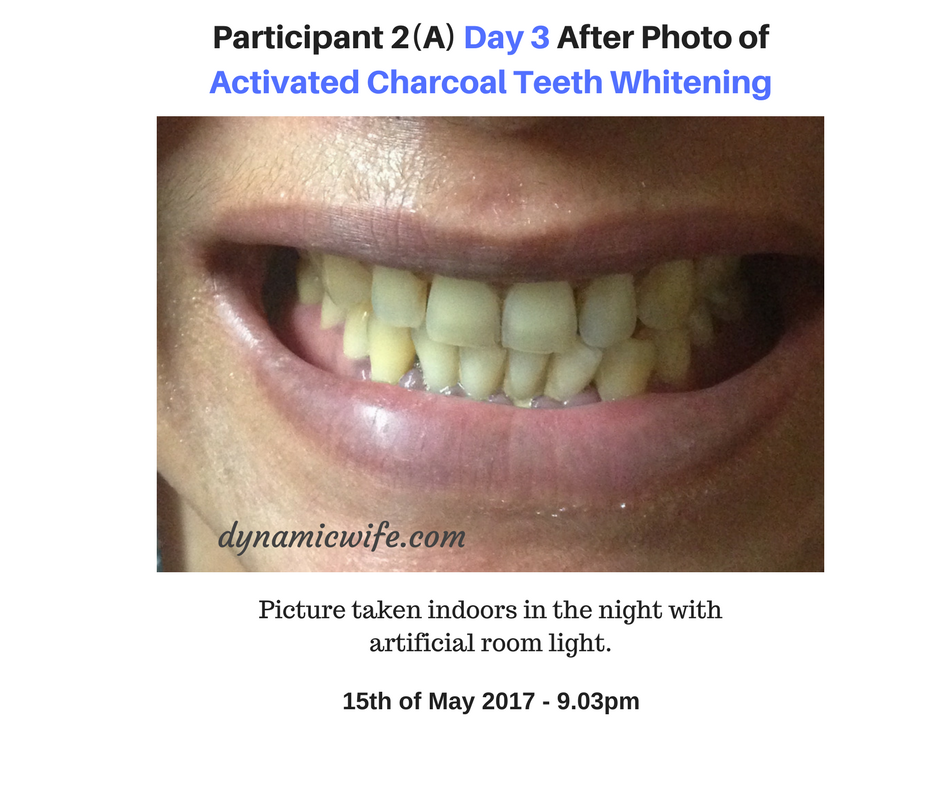 Participant 2 Day 3 Photo of Activated Charcoal Whitening Results