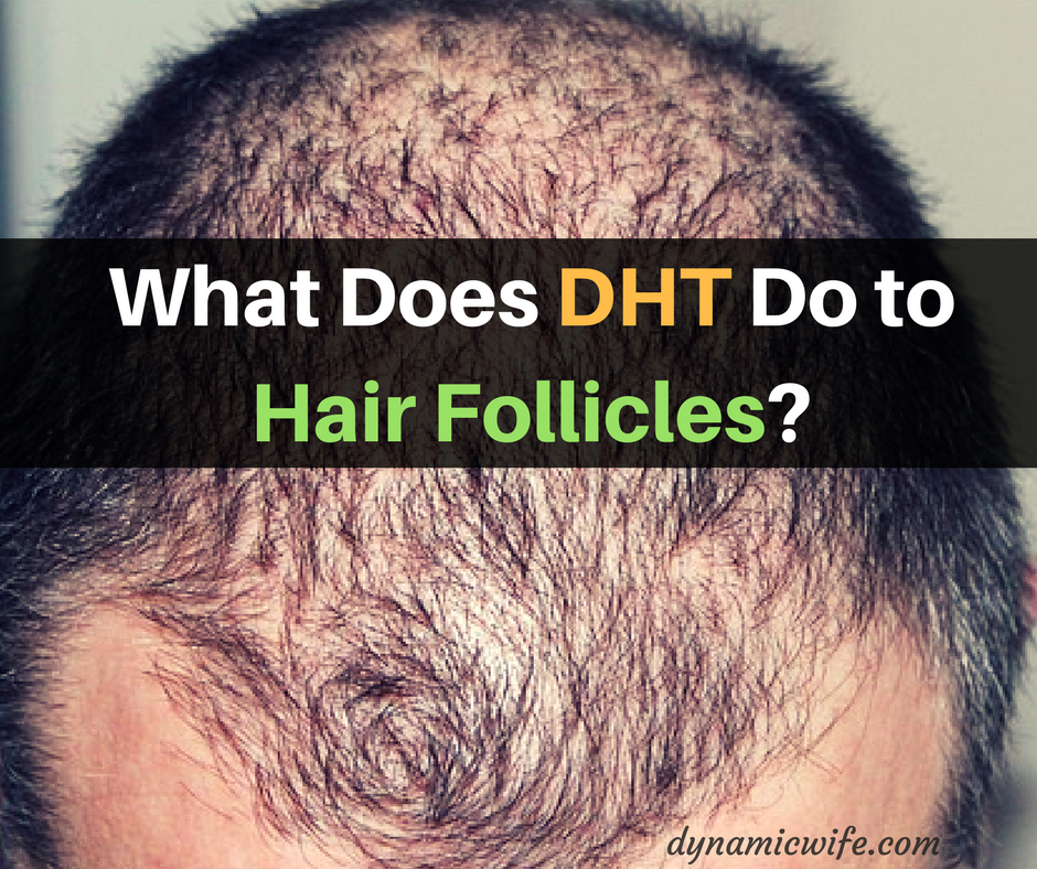 What Does DHT Do to Hair Follicles?