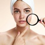 Best Moisturizers for Acne Prone Skin ( 2018-Reviews and Guides)