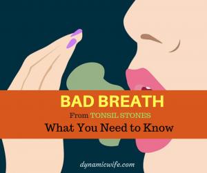 BAD Breath From Tonsil Stones – Is It Curable?